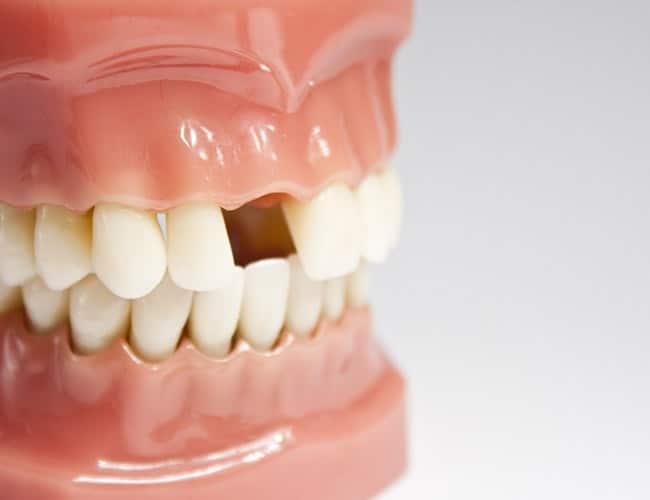 missing-teeth-mob