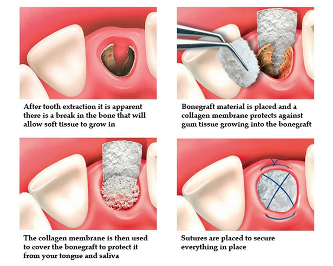 Implant and Surgical - Optimal Dental